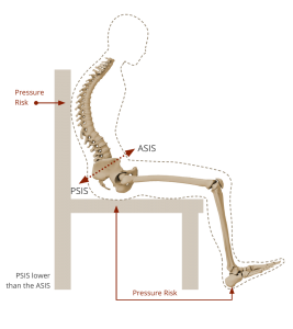 posterior pelvic tilt Seating Matters.png